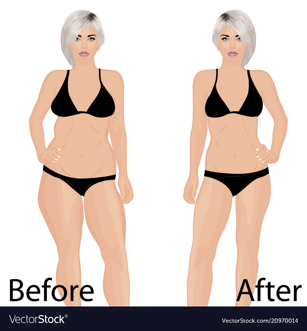Woman body correction liposuction