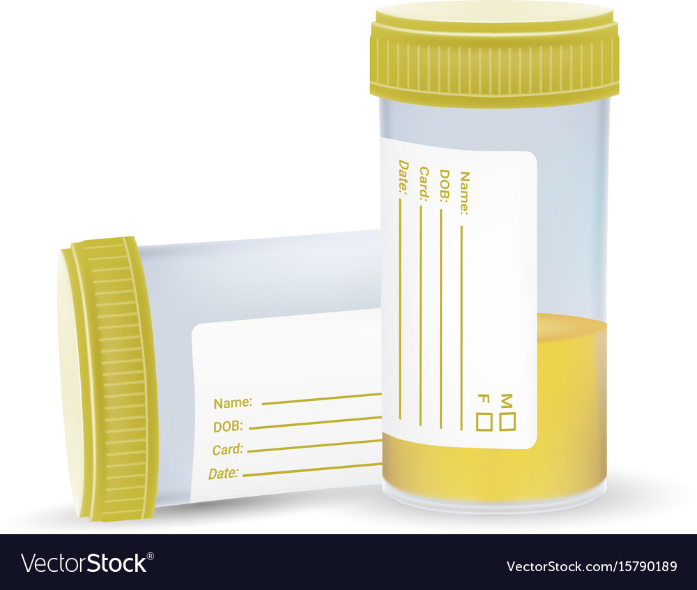 Urine test in a plastic jar isolated on a white vector image