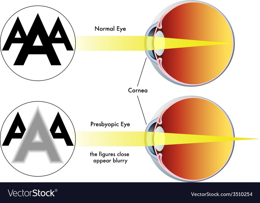 Presbyopia Royalty Free Vector Image Vectorstock