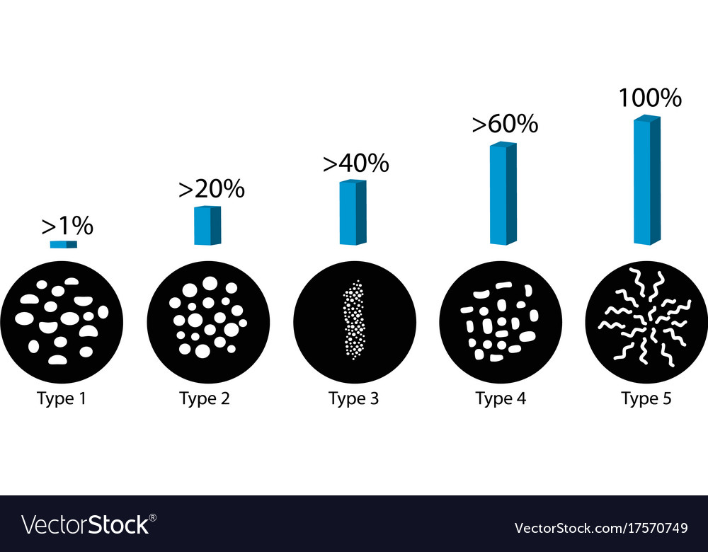 Breast cancer different types of microcalcinates vector image