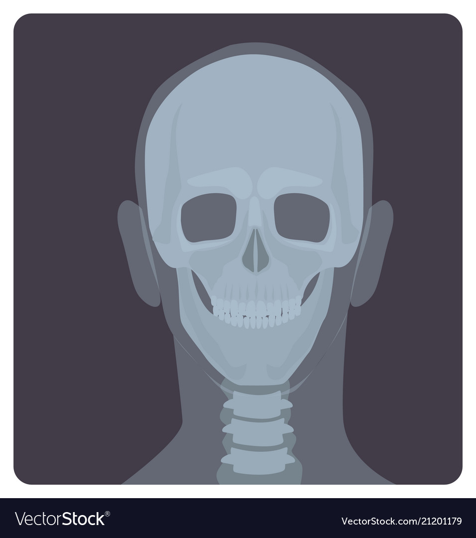 Frontal radiograph of skull x-radiation picture Vector Image