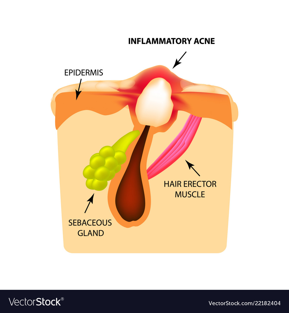 Inflammatory comedones acne