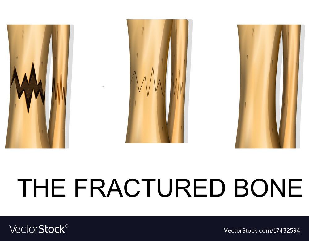 Bone fracture trauma Royalty Free Vector Image