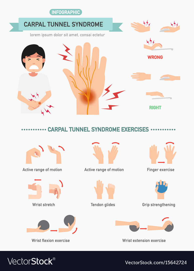 Carpal Tunnel Syndrome Infographic Royalty Free Vector Image