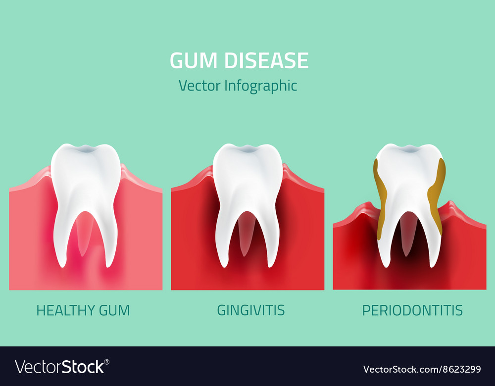Gum Disease Stages Teeth Infographic Royalty Free Vector