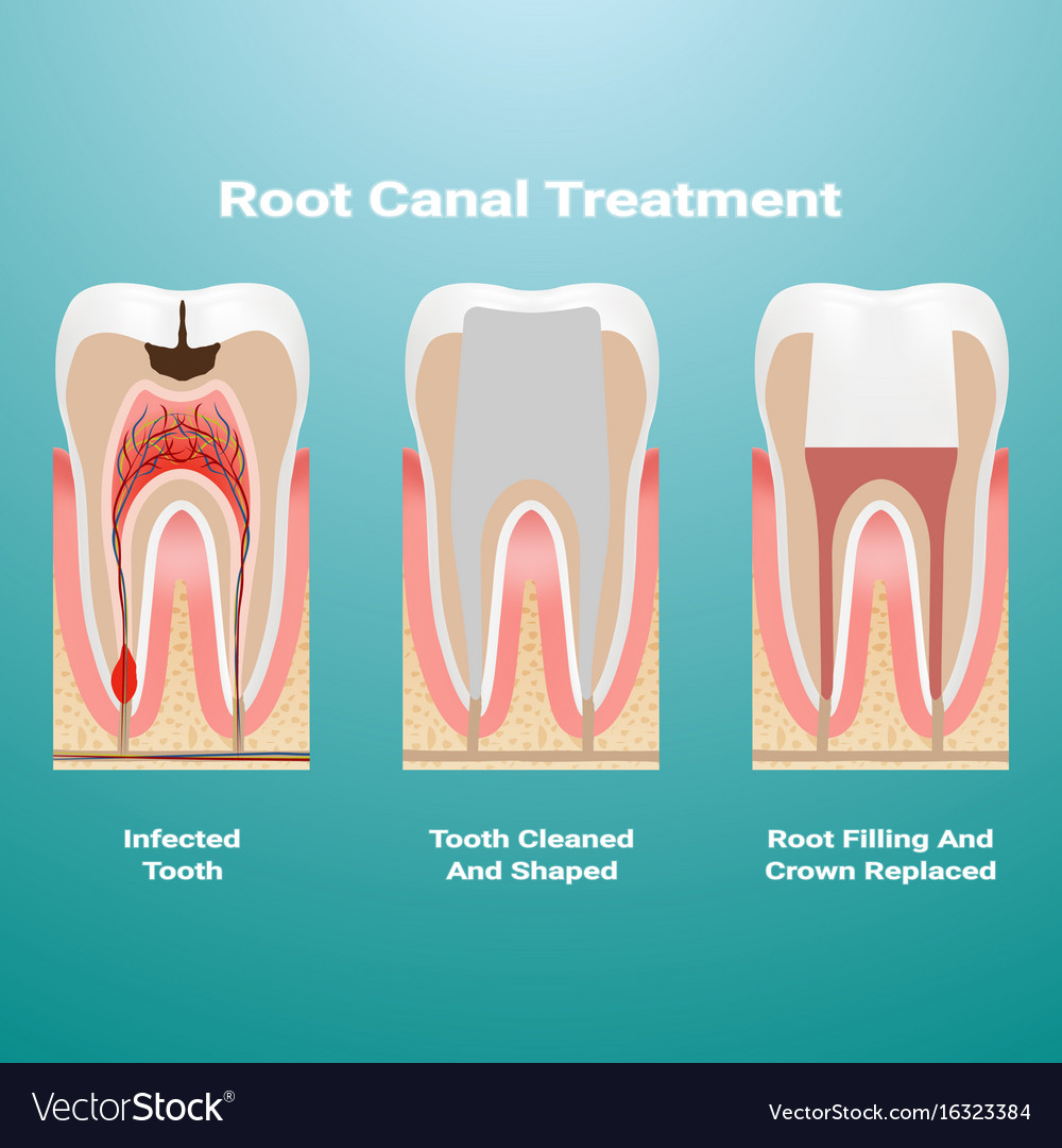 Pulpitis root canal therapy infected pulp is
