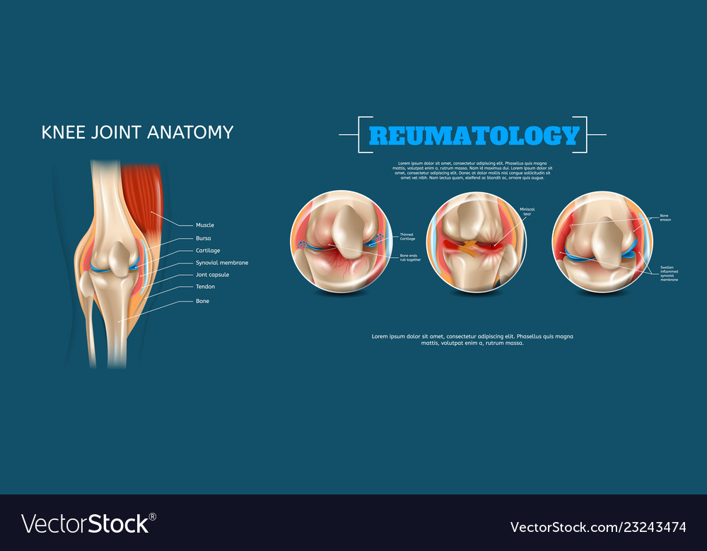 Realistic Banner Knee Joint Anatomy Royalty Free Vector