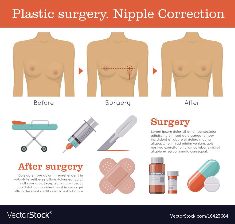 Nipple correction plastic surgery