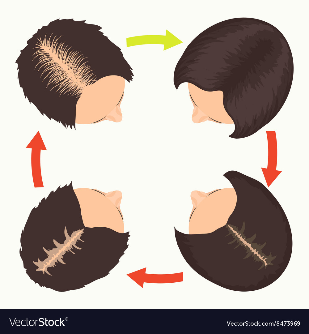 Pattern Hair Loss Unique Inspiration Design