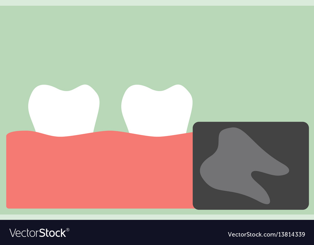 X-ray wisdom tooth