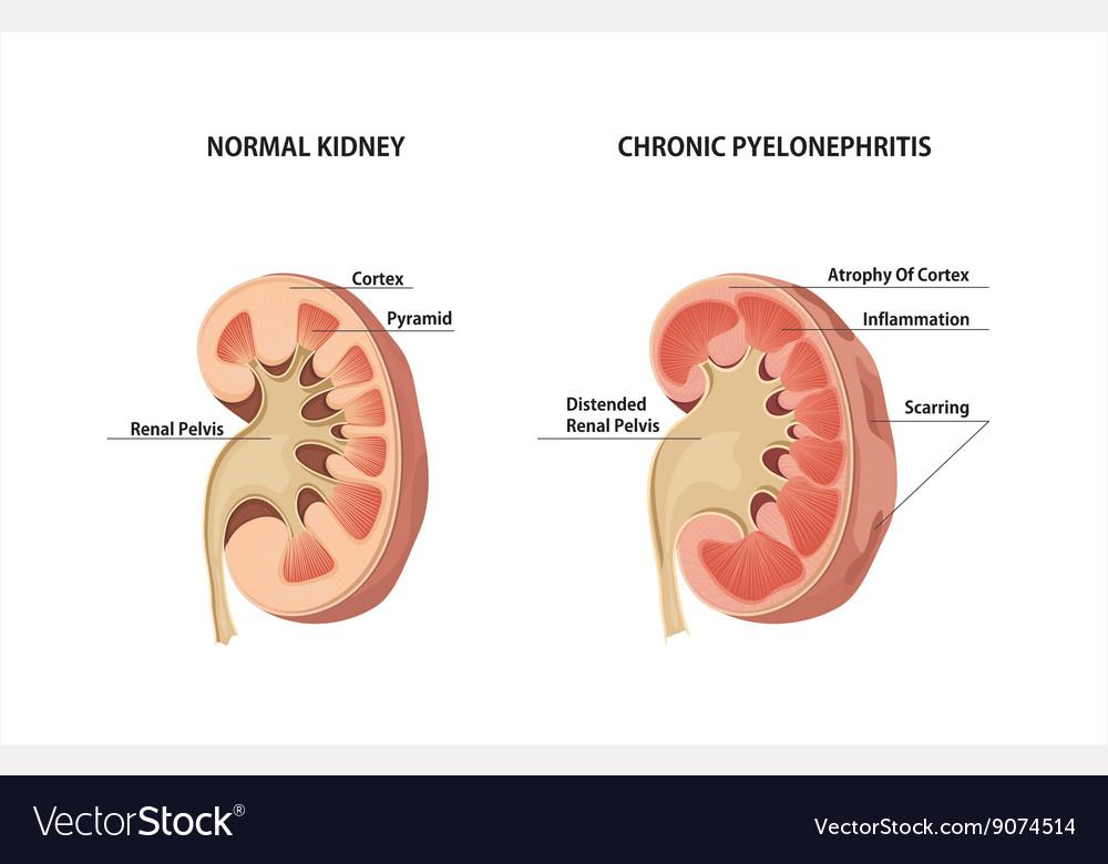 diagram of pyelonephritis wiring diagram web  diagram of pyelonephritis #6