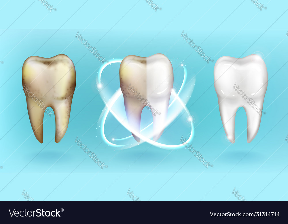 Clean and dirty tooth whitening or clearing teeth