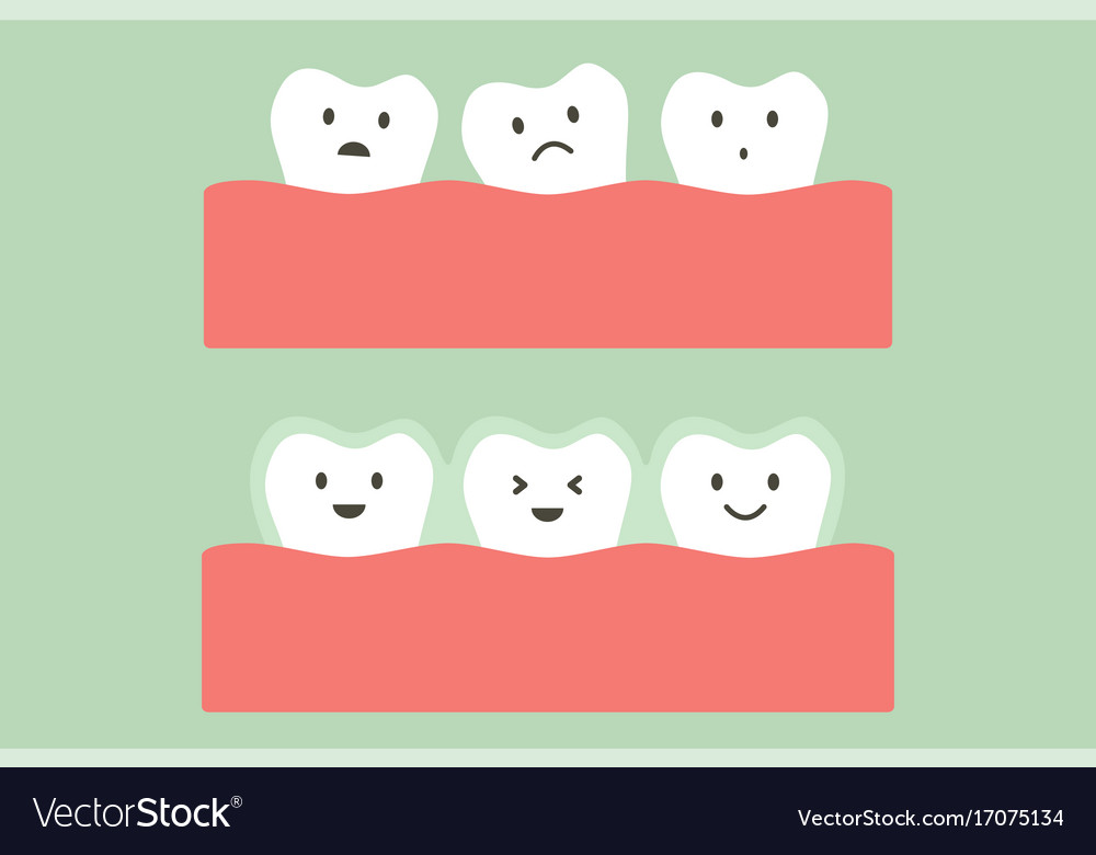 Before and after teeth wear invisible braces vector image