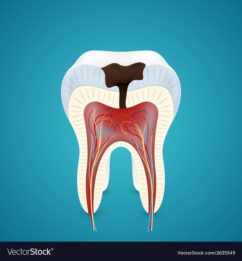 Teeth caries in cutaway