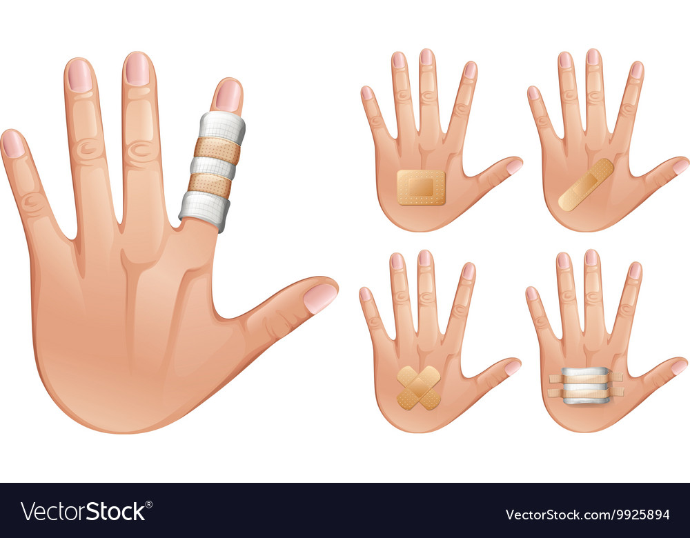 Fingers and hands wrapped with bandages vector image