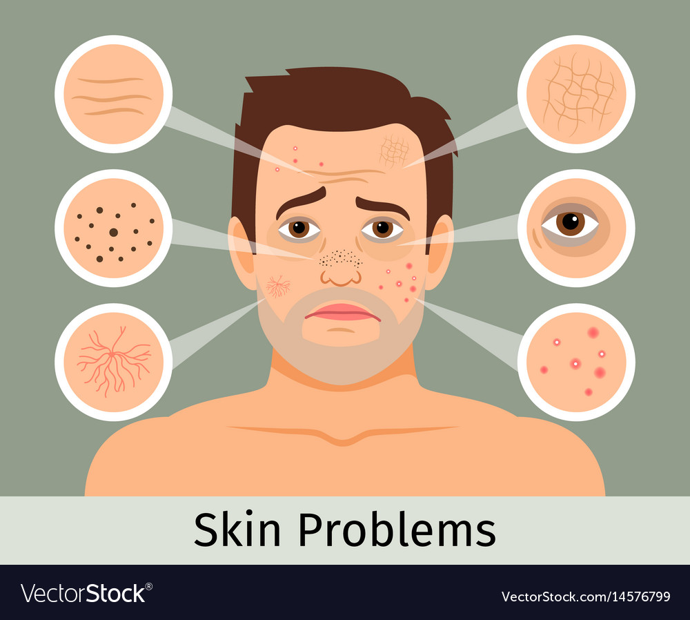 Male facial skin problems vector image