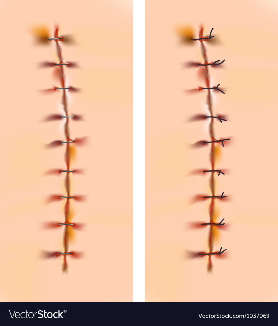 Scars with staples and sutures vector image