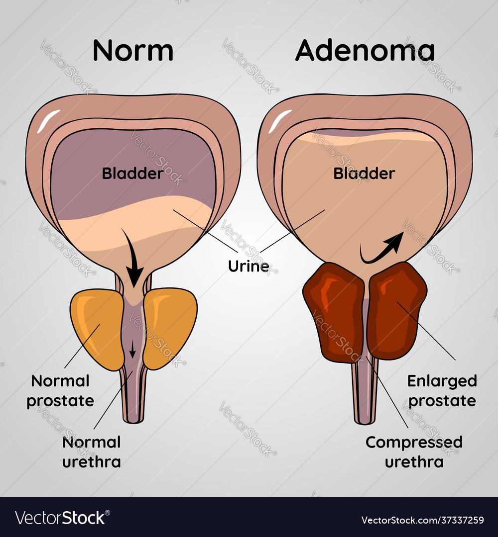 Su jok prostate adenoma kezelés