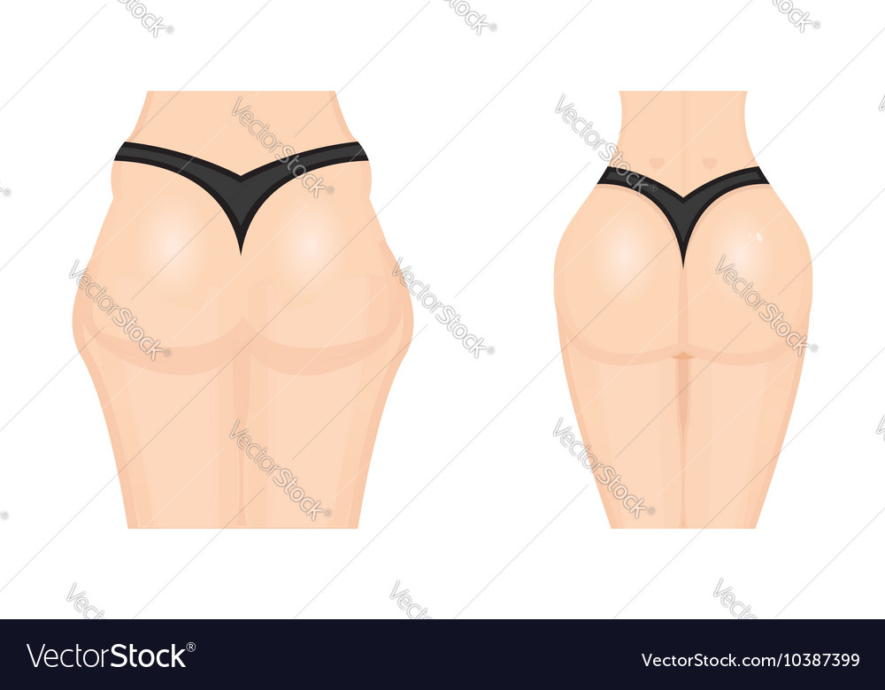 Liposuction icon before and after