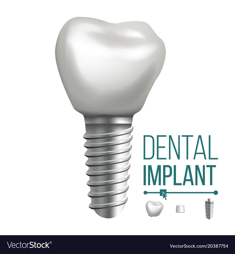 Dental implant molar human teeth dental