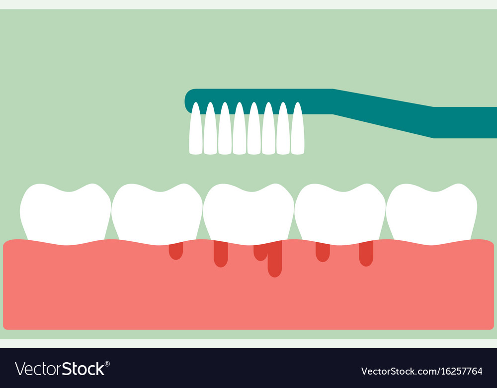 Brushing teeth with bleeding on gum and tooth vector image ccuart Gallery