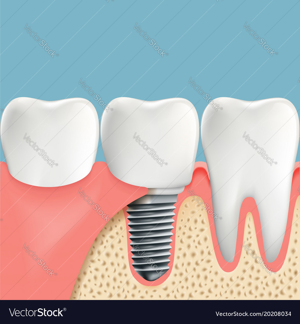 Human Teeth And Dental Implant Anatomy Of The Vector Image