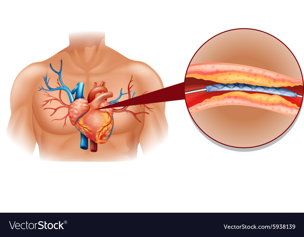 Human Heart Diagram With Balloon Tube Royalty Free Vector