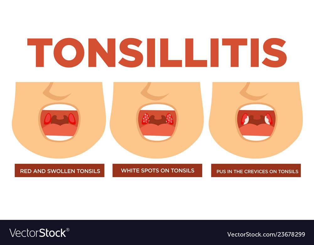 Tonsillitis red and swollen tonsils white spots