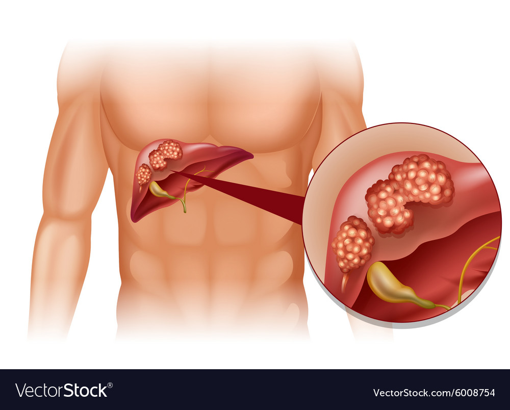 Liver cancer in human vector image