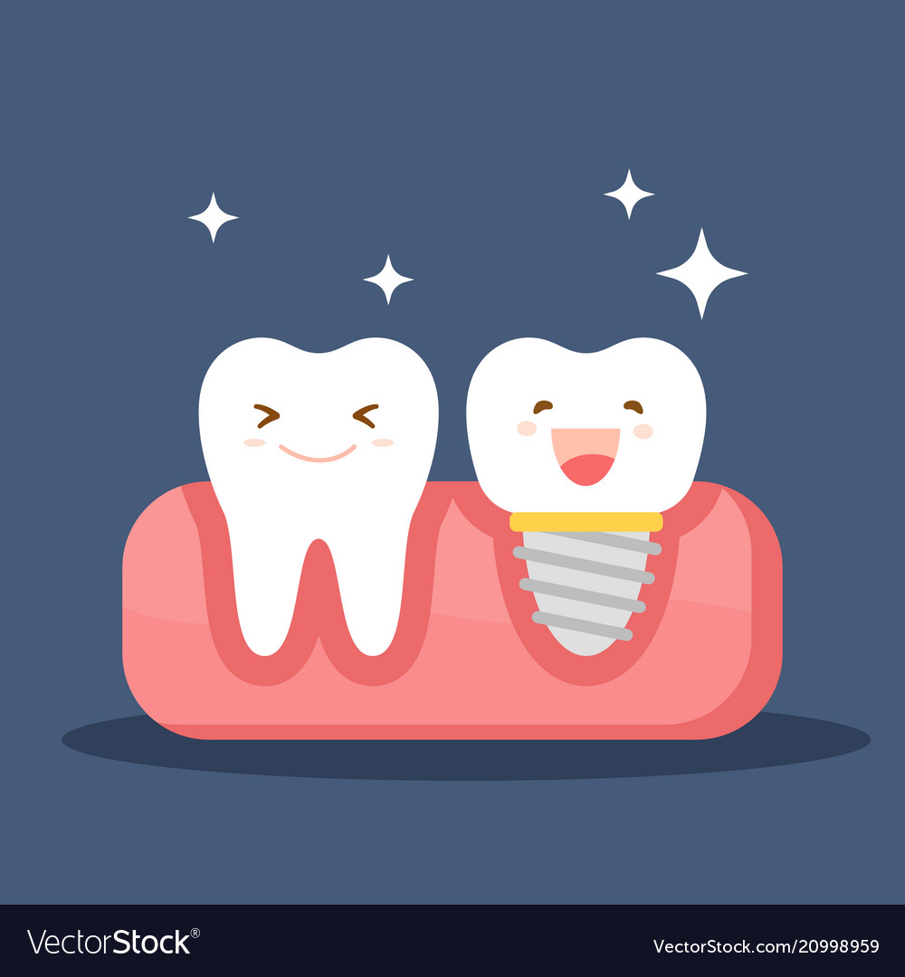 dental implant and a normal tooth restoration in vector image