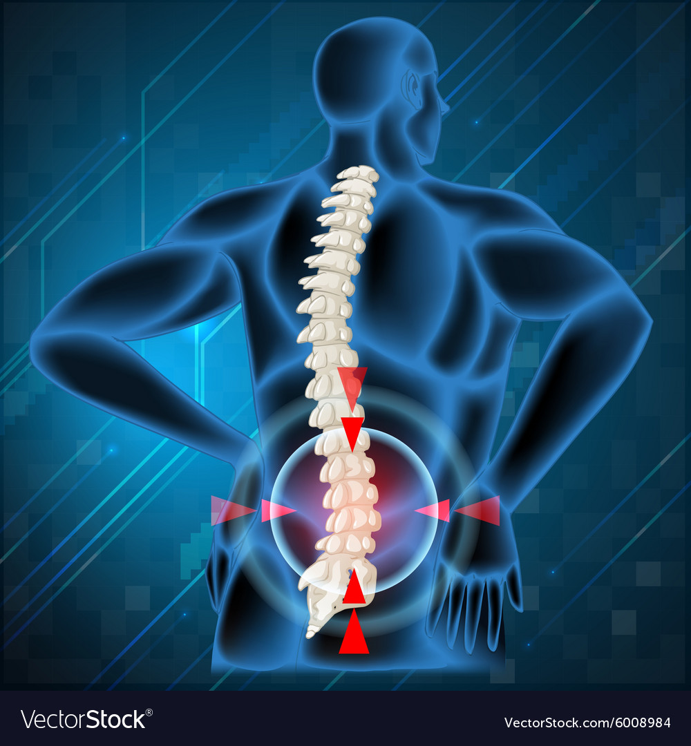 Spine Bone Showing Back Pain Royalty Free Vector Image