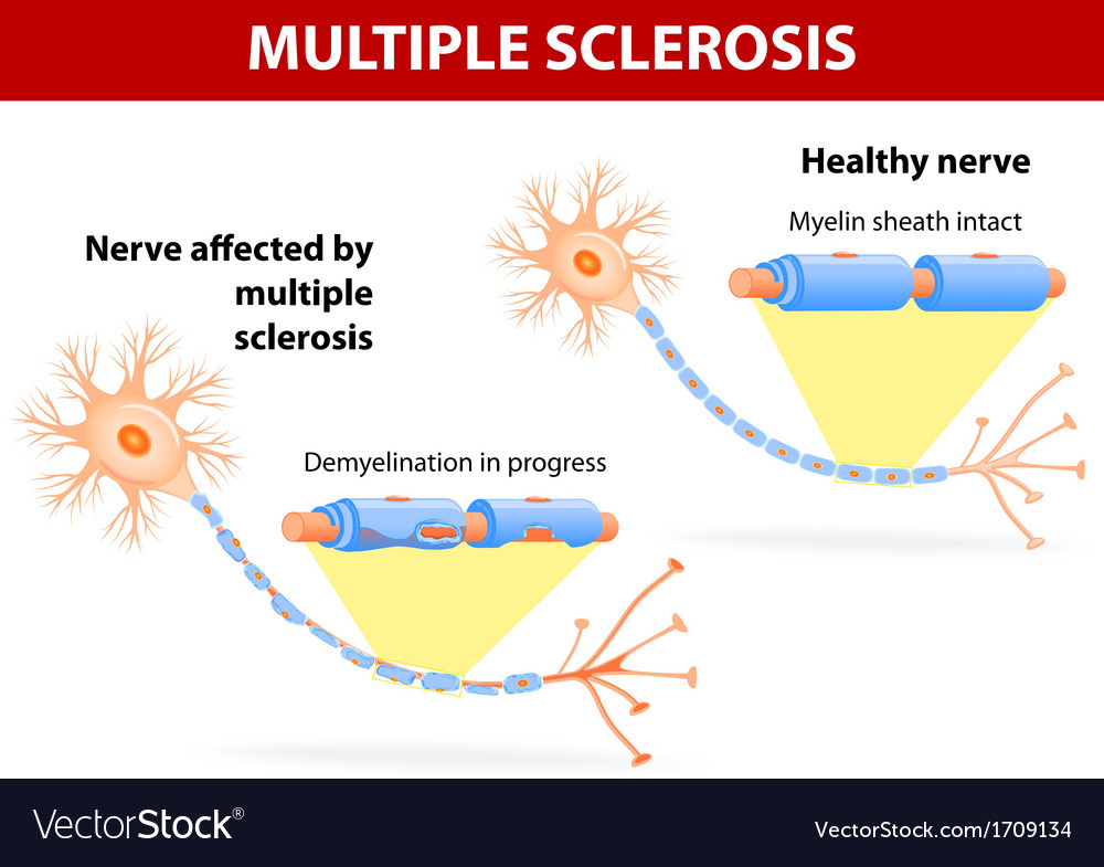Nerve affected by multiple sclerosis