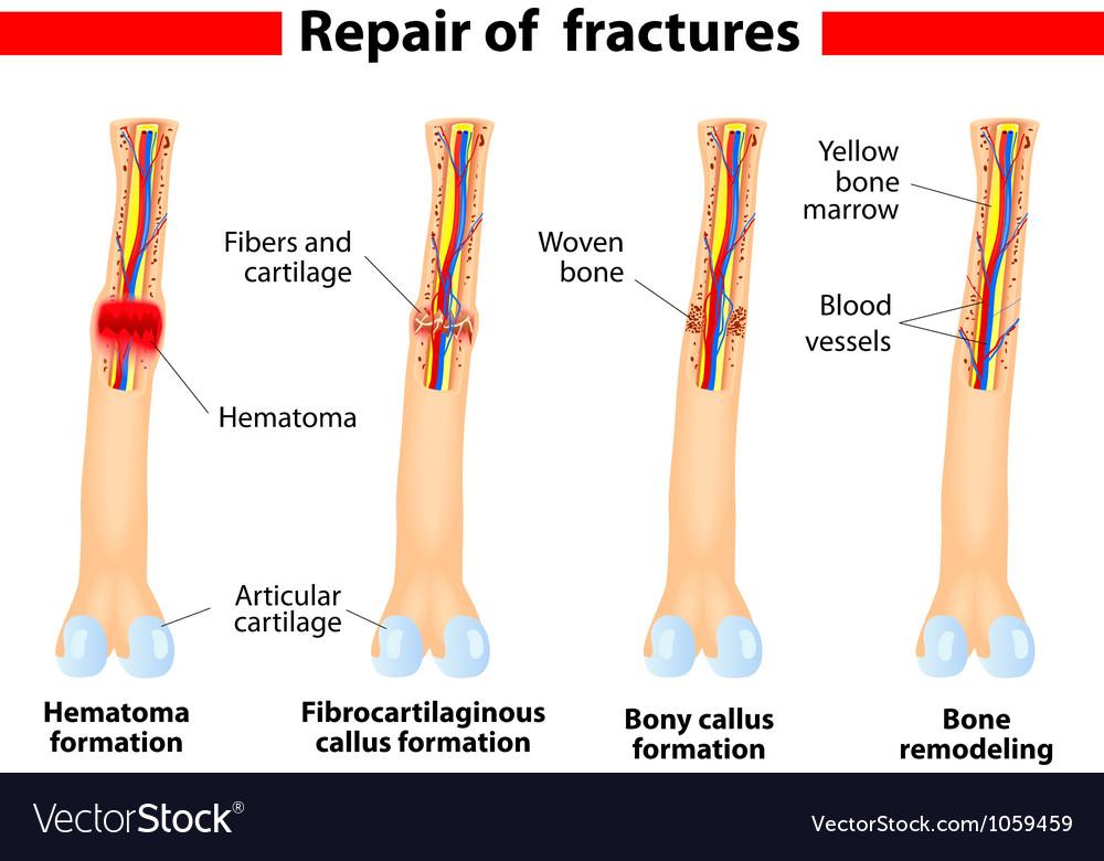 Bone Fracture And Repair Royalty Free Vector Image