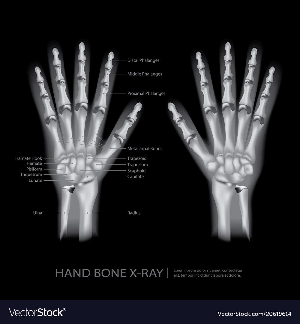 Hand Bone X Ray Royalty Free Vector Image Vectorstock