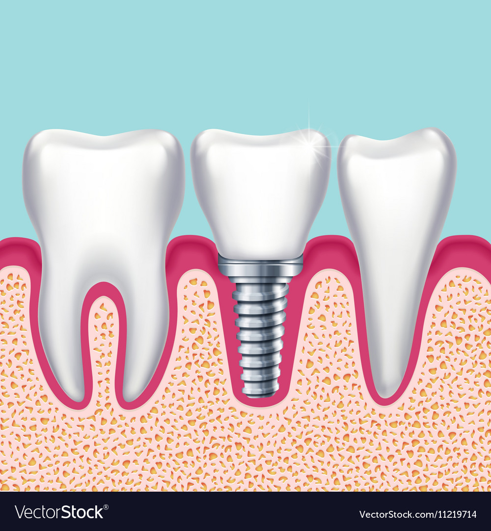 Human Teeth And Dental Implant In Jaw Orthodontist