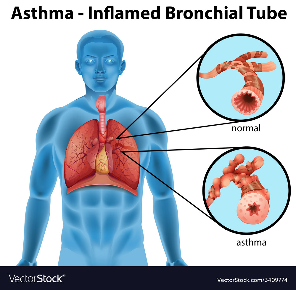 Asthma-inflamed bronchial tube Royalty Free Vector Image
