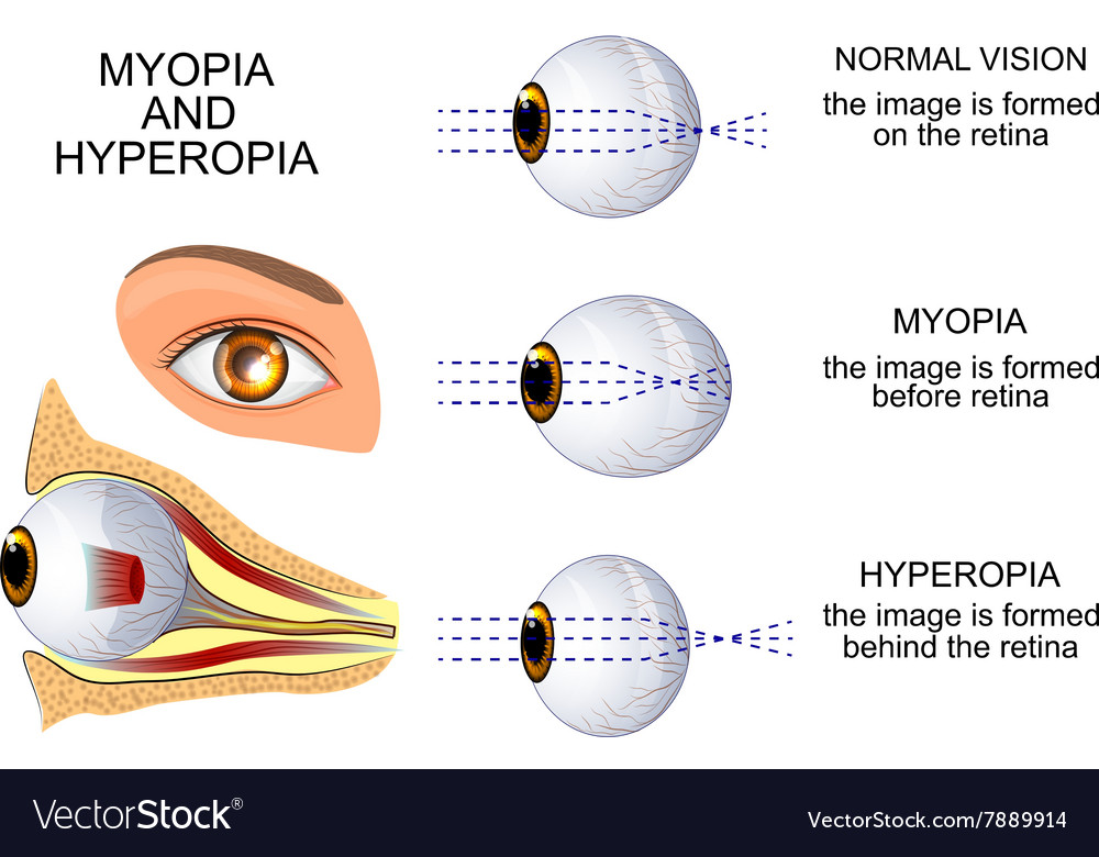 myopia és hyperopia fiziológia