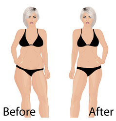 woman body correction liposuction vector image