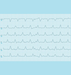 Electrocardiogram test results curves on blue vector