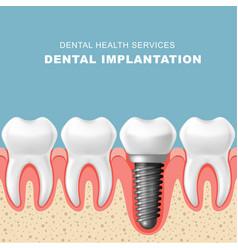 Dental implantation - row of teeth implant vector