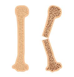 Healthy bone and broken bone with osteoporosis vector