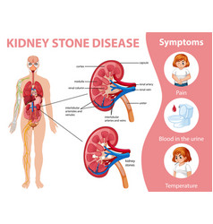 Kidney stones disease and symptoms infographic vector