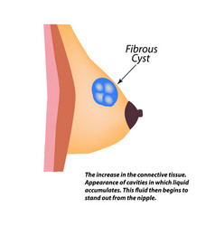 fibrous cyst breast world breast cancer day tumor vector image