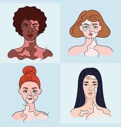 Women faces with vitiligo - set isolated vector