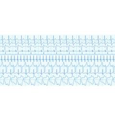 Cardiograms vector image vector image
