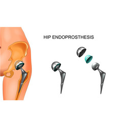 Female hip and hip prosthesis vector