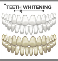 Teeth whitening dental care cleaning vector