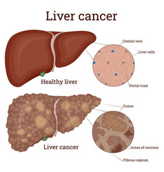 Liver cancer vector