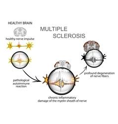Multiple sclerosis Neurology vector