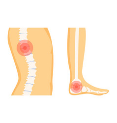 Spine and foot trauma set vector